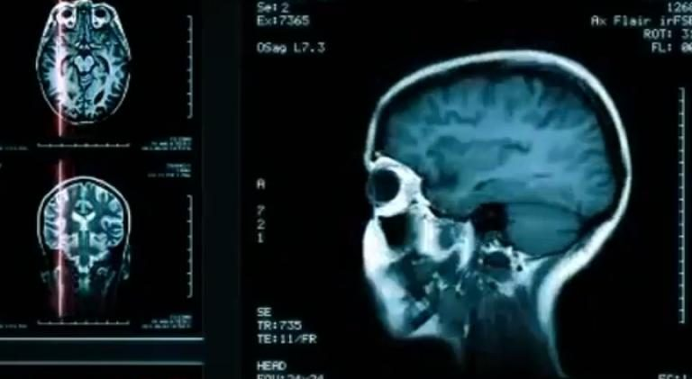 Oameni de știință în pragul cercetării – Alzheimer