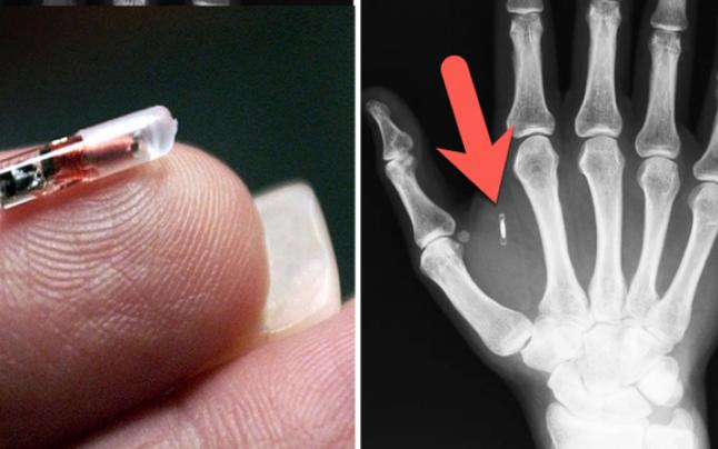 Unul din cinci germani își implantează microcip sub piele